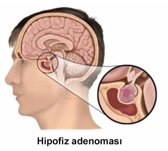 hipofiz adenoması nədir