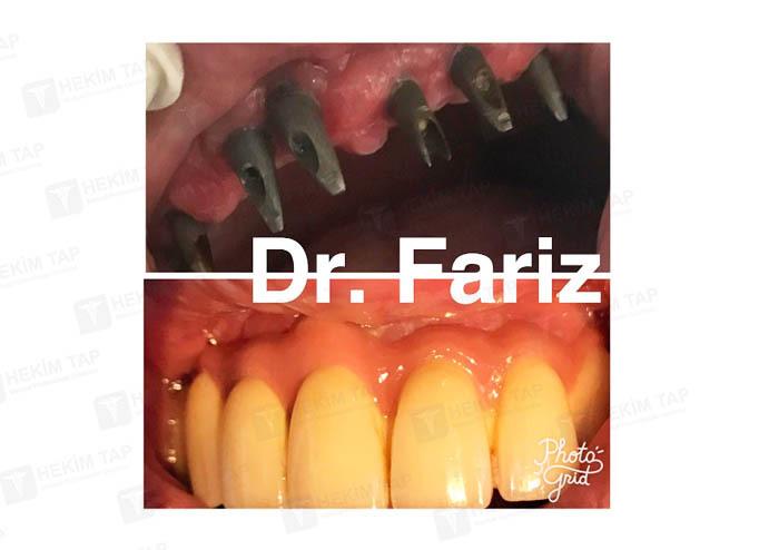 "<span class=""translation_missing"" title=""translation missing: az.doctors.doctor.portfolio"">Portfolio</span> Fariz Abbasov hekimtap.az"
