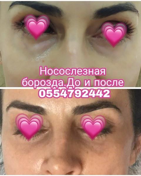 """<span class=""""translation_missing"""" title=""""translation missing: az.doctors.doctor.portfolio"""">Portfolio</span> Sevil Heydərova hekimtap.az"""