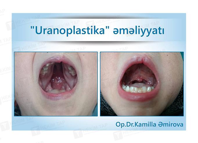 """<span class=""""translation_missing"""" title=""""translation missing: az.doctors.doctor.portfolio"""">Portfolio</span> Kamilla Əmirova hekimtap.az"""