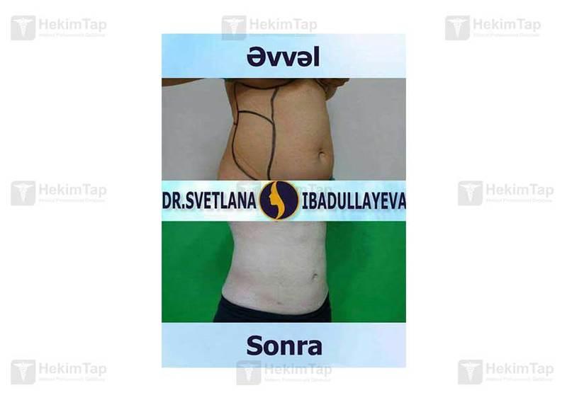 "<span class=""translation_missing"" title=""translation missing: az.doctors.doctor.portfolio"">Portfolio</span> Svetlana İbadullayeva hekimtap.az"