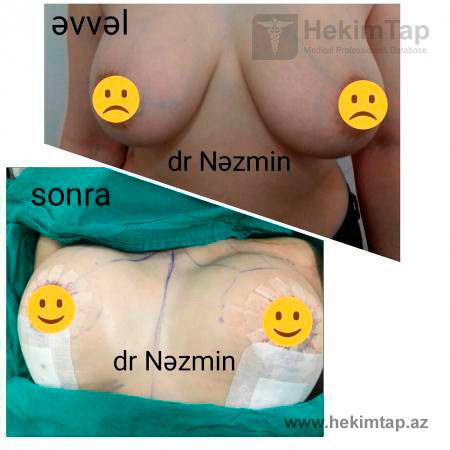 "<span class=""translation_missing"" title=""translation missing: az.doctors.doctor.portfolio"">Portfolio</span> Nəzmin Musayeva hekimtap.az"