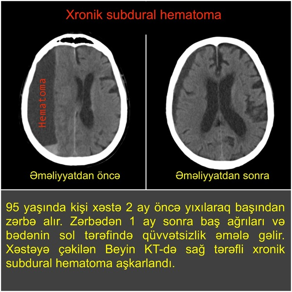 "<span class=""translation_missing"" title=""translation missing: az.doctors.doctor.portfolio"">Portfolio</span> Neyrocərrah Ruslan Yunusov"