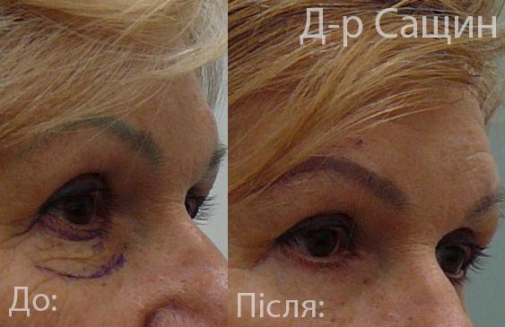 Портфоліо Віктор Сащин doctortap.com.ua