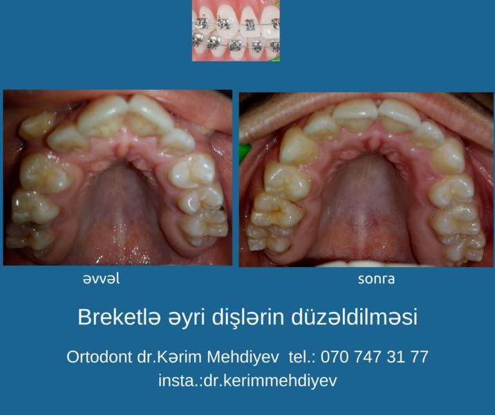 "<span class=""translation_missing"" title=""translation missing: az.doctors.doctor.portfolio"">Portfolio</span> Kərim Mehdiyev hekimtap.az"