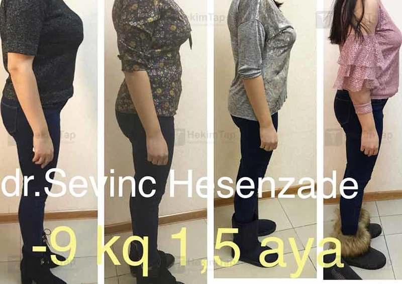 Portfolio Sevinc Hasanzada hekimtap.az
