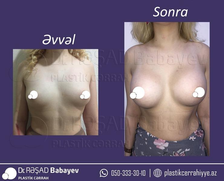 Портфолио Rəşad  Babayev hekimtap.az