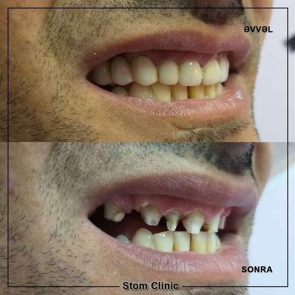 Qalereya Stomatoloji Klinika