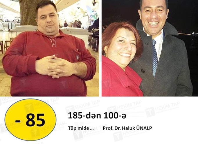 "<span class=""translation_missing"" title=""translation missing: az.doctors.doctor.portfolio"">Portfolio</span> Haluk Ünalp hekimtap.az"