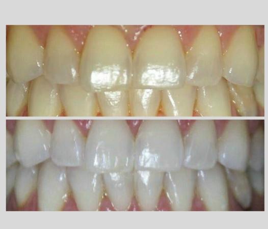 """Відбілювання зубів системою """"white pearls"""".Європейський Стандарт Якості  doctortap.com.ua"""