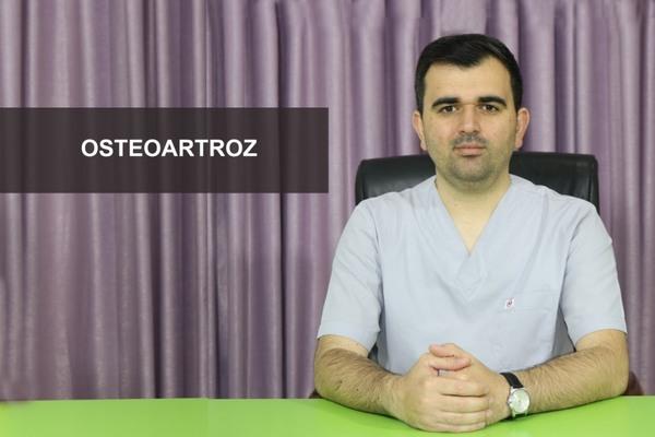 Osteoartroz  hekimtap.az