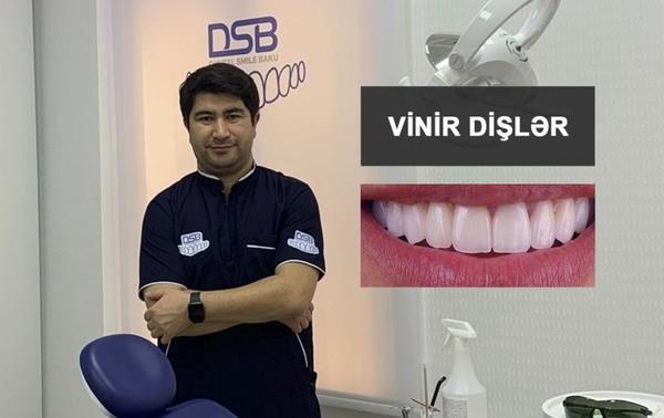 Vinir dişlər