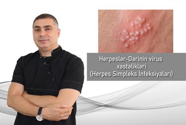 Herpeslər - Dərinin virus xəstəlikləri (Herpes Simpleks İnfeksiyaları)