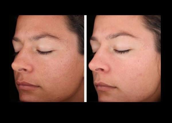 kоралловый пилинг альтернатива химическому очищению кожи