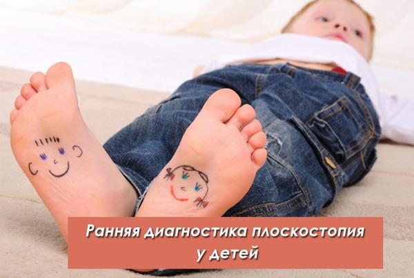Раняя диагностика плоскостопия у детей