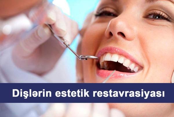 Dişlərin estetik restavrasiyası