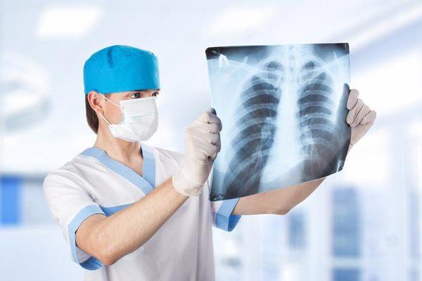 rentgen diaqnostikası nədir