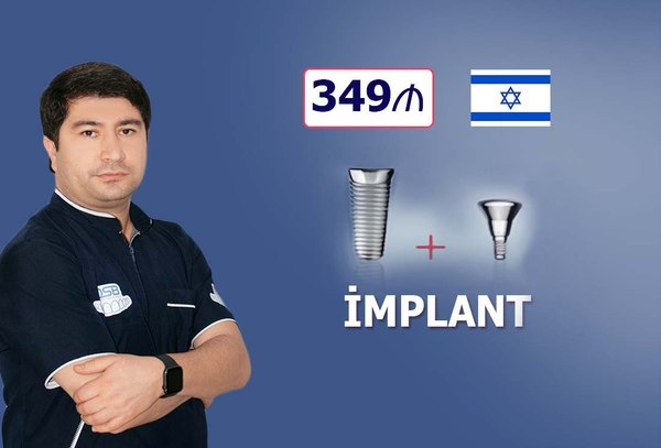 İsrayil - Implant dişlər cəmi 349 hekimtap.az