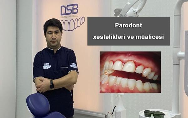 Parodont xəstəlikləri və müalicəsi