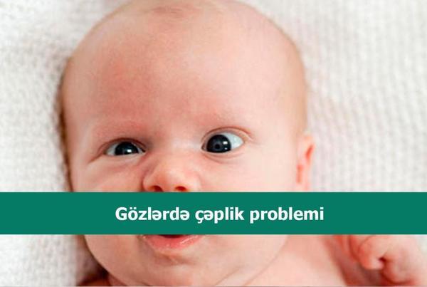 Gözlərdə çəplik problemi  hekimtap.az