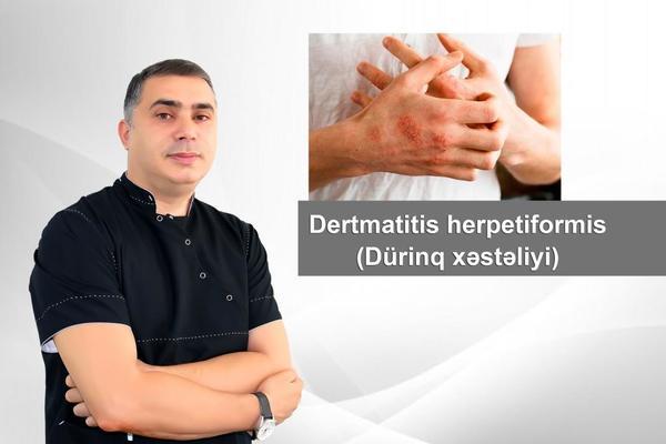 Dertmatitis herpetiformis - Dürinq xəstəliyi  hekimtap.az