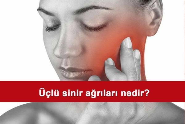Üçlü sinir ağrıları nədir?
