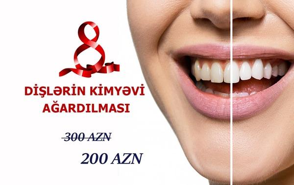 Dişlərin kimyəvi ağardılması cəmi 200 azn hekimtap.az