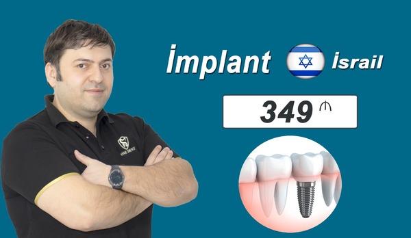 Israil implantı cəmi 349 manat hekimtap.az