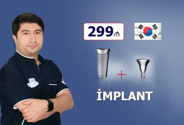Implant dişlər cəmi 299 manat hekimtap.az