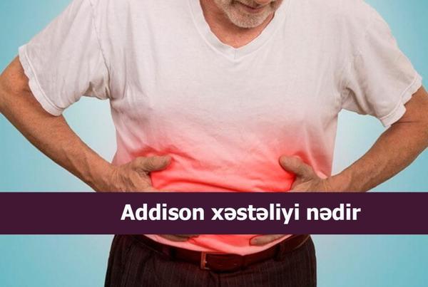 Addison xəstəliyi nədir?  hekimtap.az