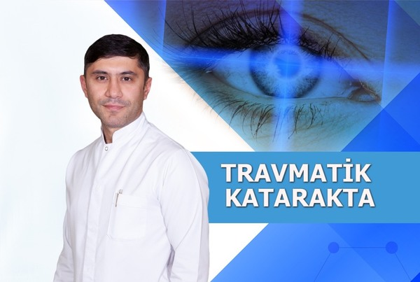 Travmatik katarakta