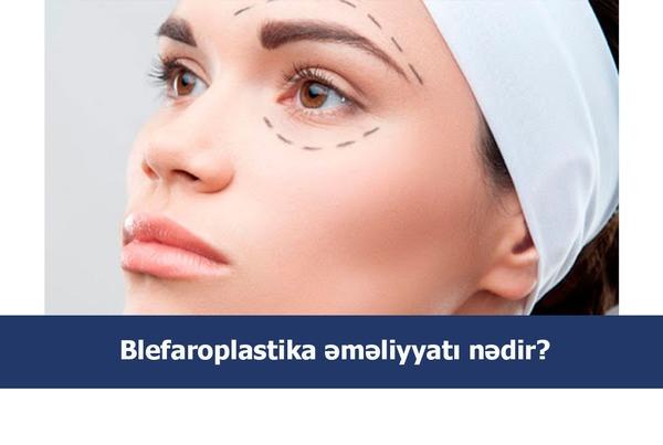 Blefaroplastika əməliyyatı nədir?