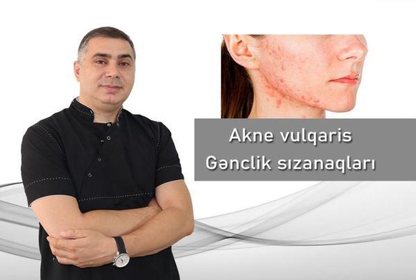 Akne vulqaris - Gənclik sızanaqları  hekimtap.az