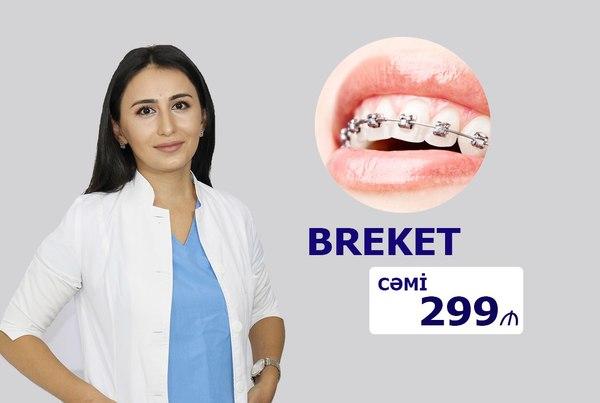 Əyri dişlərin düzəlməsi cəmi 299 manat hekimtap.az