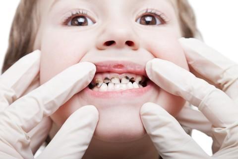 Почему нужно лечить молочные зубы?  hekimtap.az