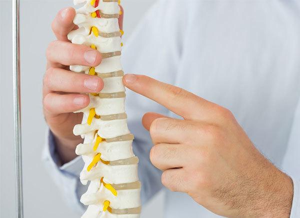 osteoporoz kimlərdə rast gəlinir