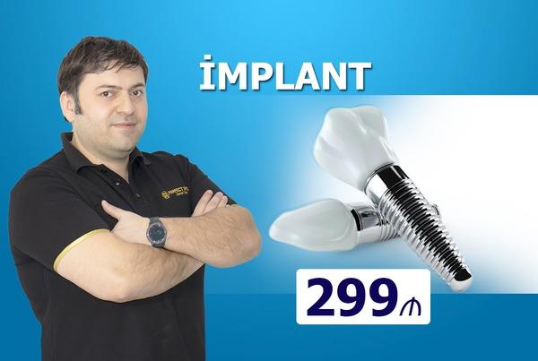 Implant cəmi 299 manat hekimtap.az
