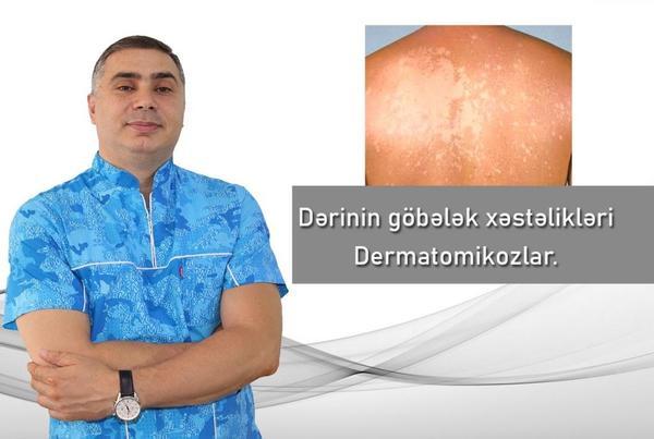 Dərinin göbələk xəstəlikləri - Dermatomikozlar hekimtap.az
