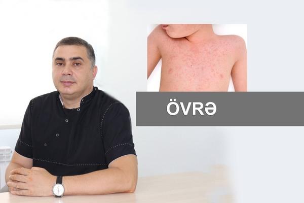 Övrə  hekimtap.az