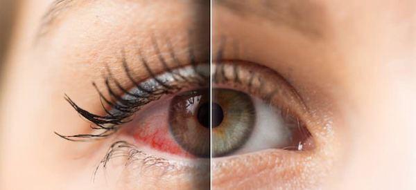 quru-göz-sindromu