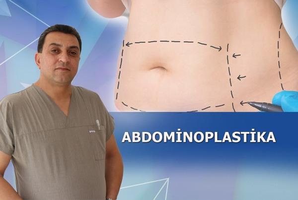Abdominoplastika