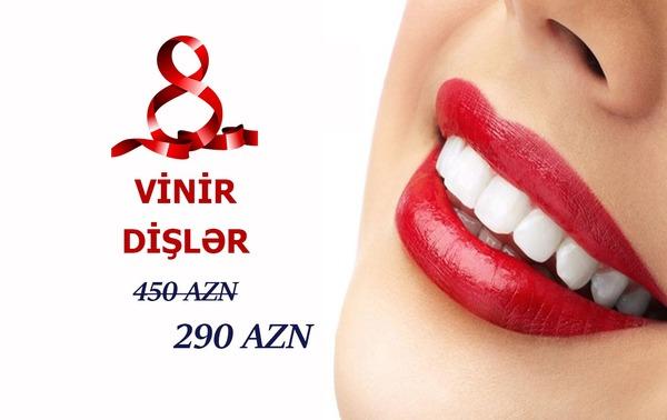 Vinir dişlər -Cəmi 290 AZN hekimtap.az