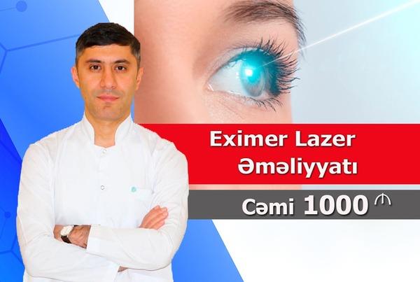 Eksimer lazer əməliyyatı  hekimtap.az