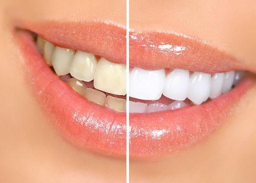 Знижка 50% на фотовідбілювання зубів системою MagicSmile doctortap.com.ua