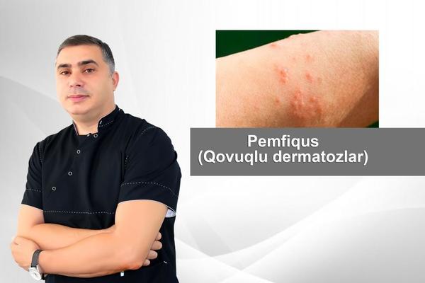 Pemfiqus - Qovuqlu dermatozlar