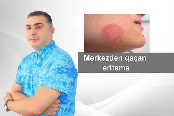 Mərkəzdən qaçan eritema  hekimtap.az