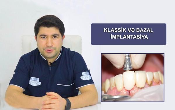 KLASSİK VƏ BAZAL İMPLANTASİYA