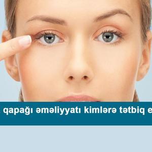 Göz qapağı əməliyyatı kimlərə tətbiq edilir?