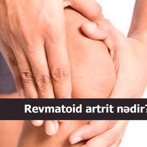 Revmatoid artrit nədir?