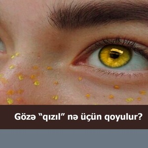 """Gözə """"qızıl"""" nə üçün qoyulur?"""